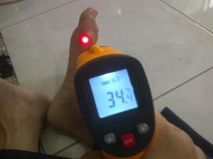 Ditembak dengan infra red thermometer terlihat bag asam urat suhunya lebih inggi