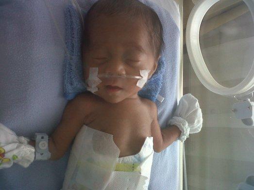 Bayi prematur Samuel berat 1050 gr waktu baru lahir,foto  usia 3 mg
