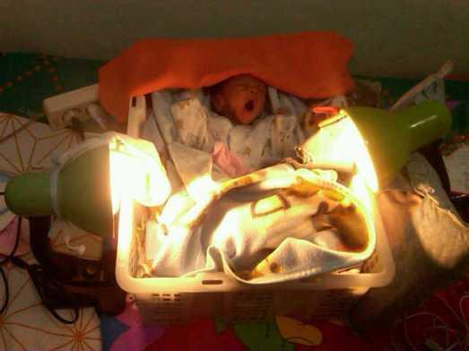 bayi farrel dengan inkubator sederhana buatan ibunya...